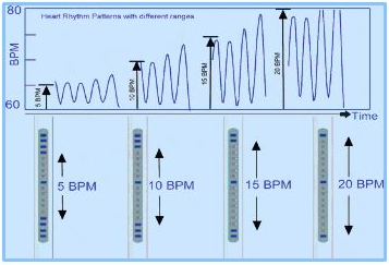 Heart Rhythm Patterns
